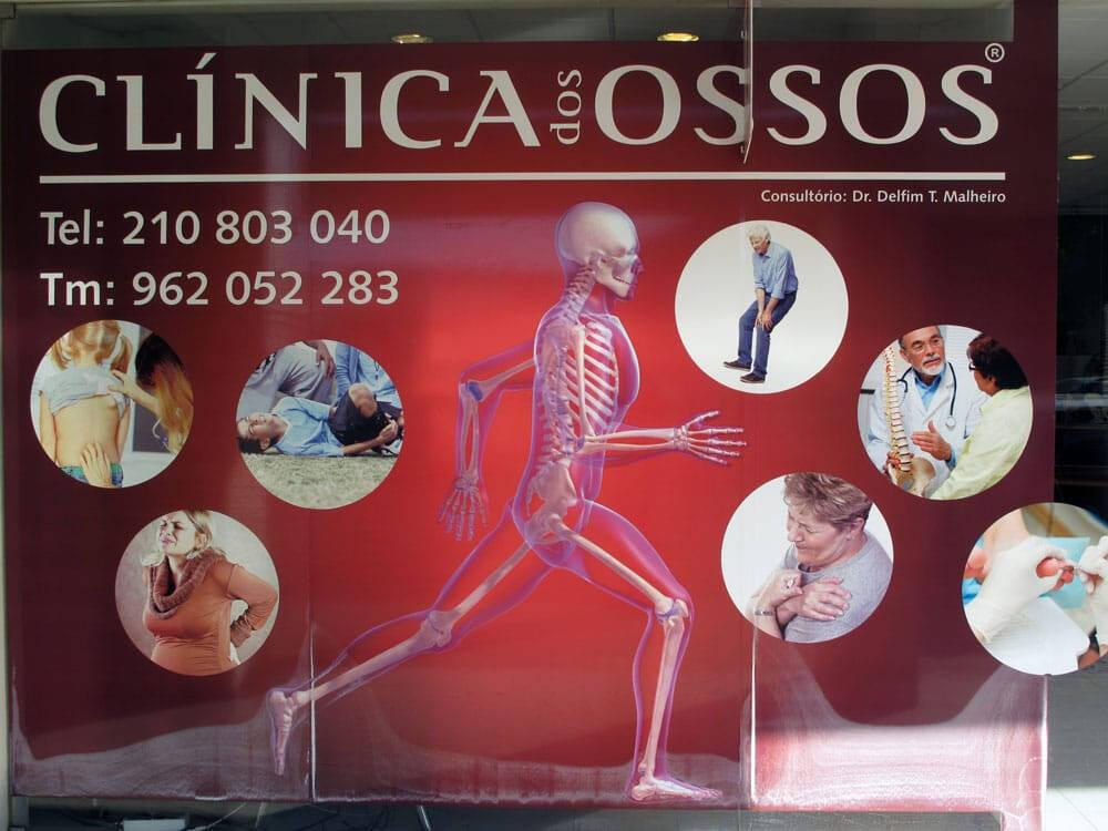 Historia Clínica dos Ossos